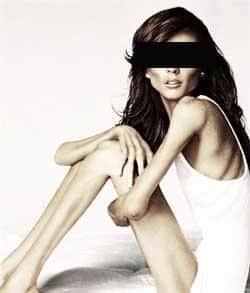 anorexia-trastornos-alimentarios