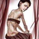 Anorexia nerviosa, diagnóstico y tratamiento