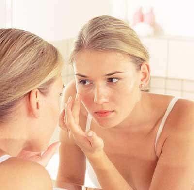 acne-dieta-antiacne