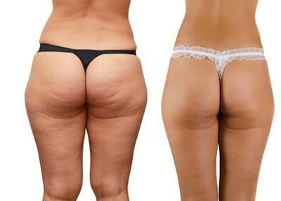una dieta correcta para bajar de peso rapido